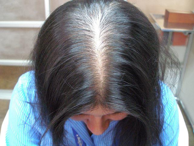 alopecia femenina tratamiento natural